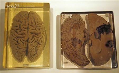 il-cervello-di-einstein