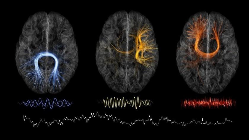 autenticare mappe cervello